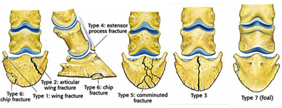 Diagnosis and Management of Fractures of the Coffin Bone and