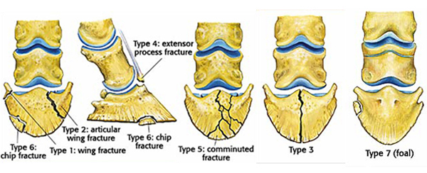 different types of bone fractures pdf